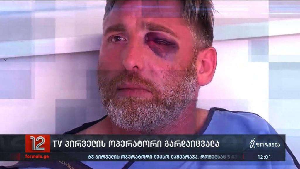 One Dead After Media and Journalists Violently Attacked in Tbilisi, Georgia