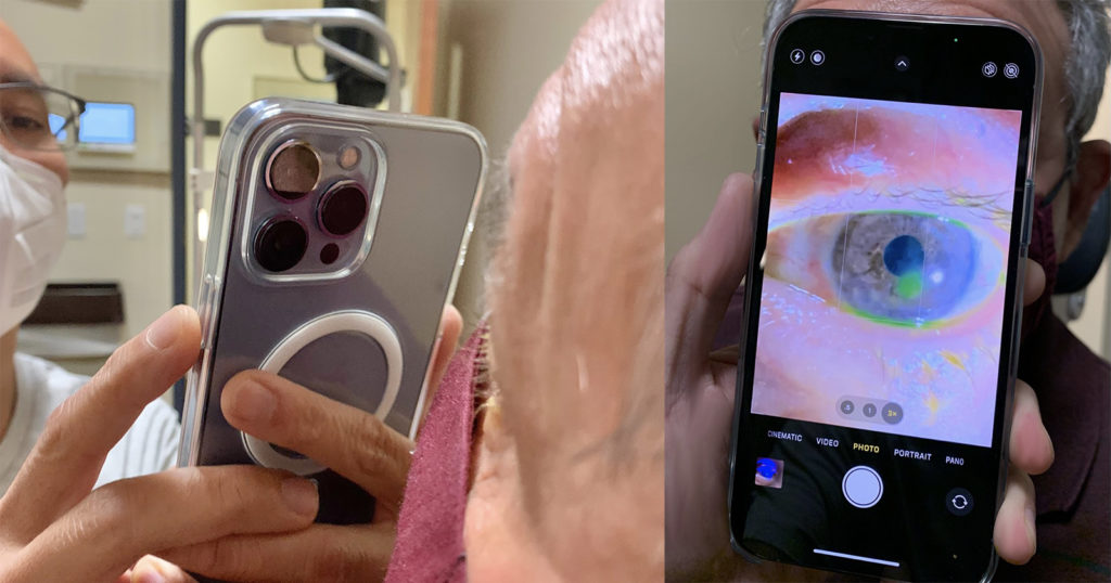 Why This Doctor Uses the iPhone 13 Pro to Photograph Patients' Eyes